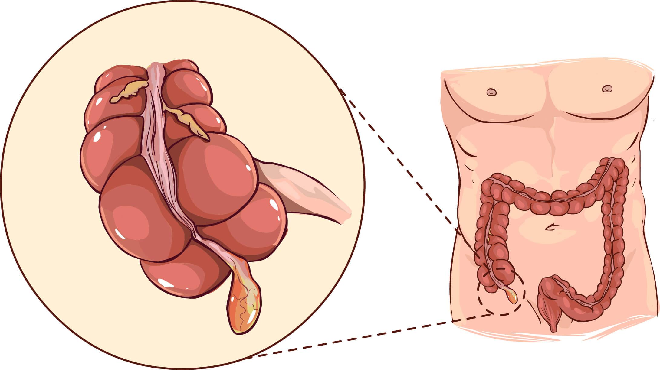Appendicitis Surgery Singapore