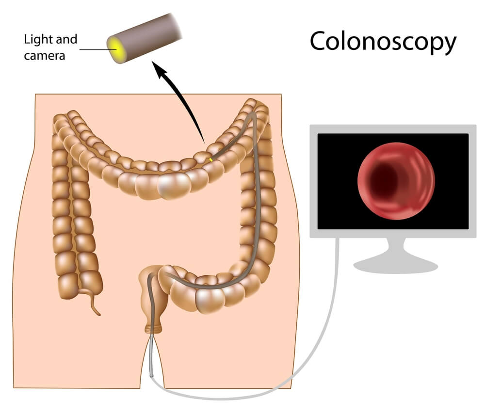 Endoscopy Singapore